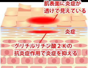 赤みのニキビ跡を治す方法